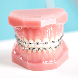 moin-treatopt-metalbraces